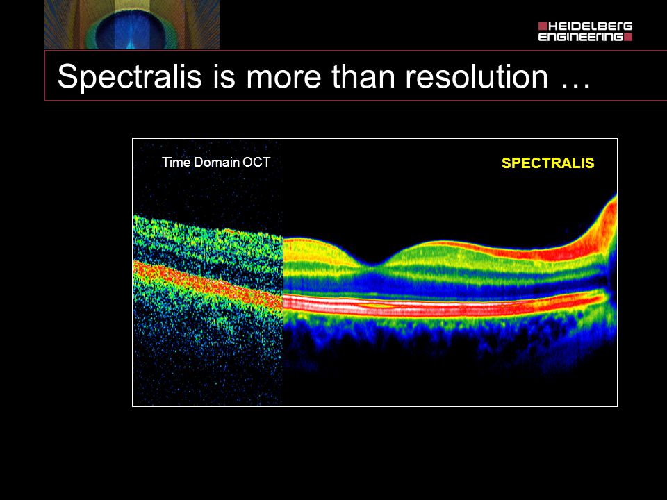 Spectralis is more than resolution …