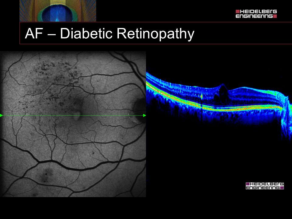 AF – Diabetic Retinopathy