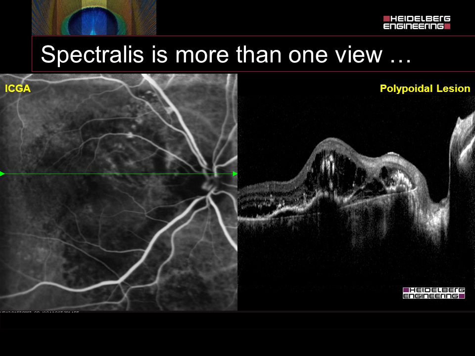 Spectralis is more than one view …