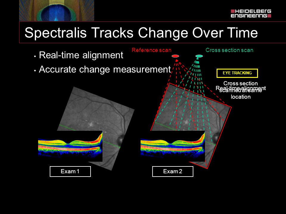 Spectralis Tracks Change Over Time