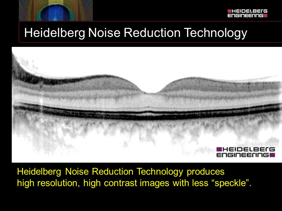 Heidelberg Noise Reduction Technology