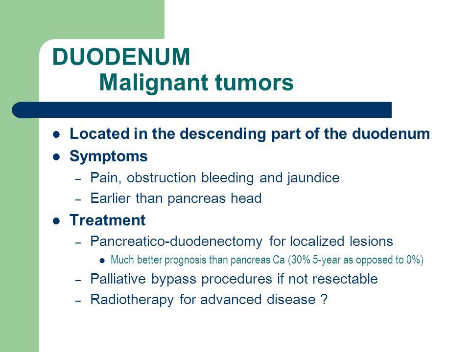 DUODENUM Malignant tumors
