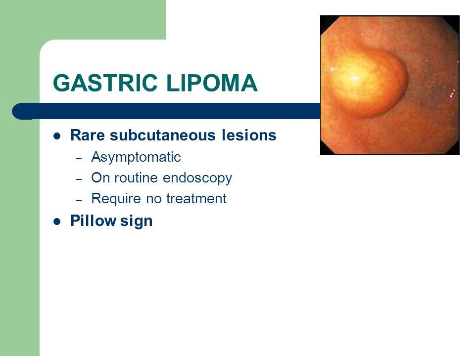 GASTRIC LIPOMA Rare subcutaneous lesions Pillow sign Asymptomatic