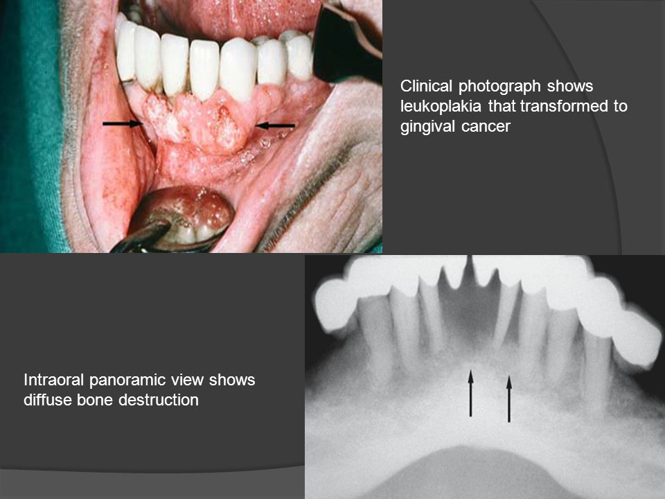 Clinical photograph shows leukoplakia that transformed to gingival cancer