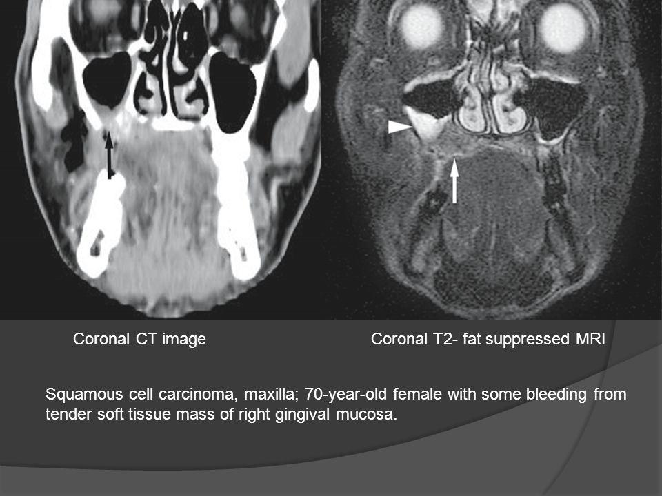 Coronal CT image Coronal T2- fat suppressed MRI.