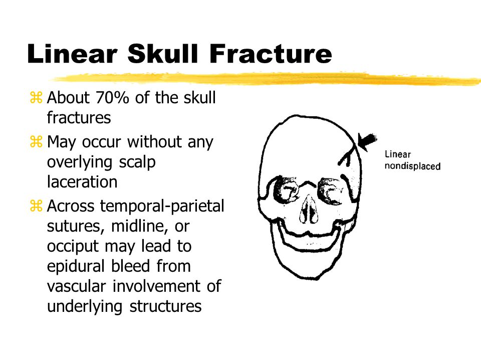 Linear Skull Fracture About 70% of the skull fractures