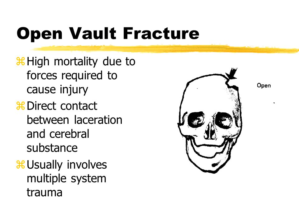 Open Vault Fracture High mortality due to forces required to cause injury. Direct contact between laceration and cerebral substance.