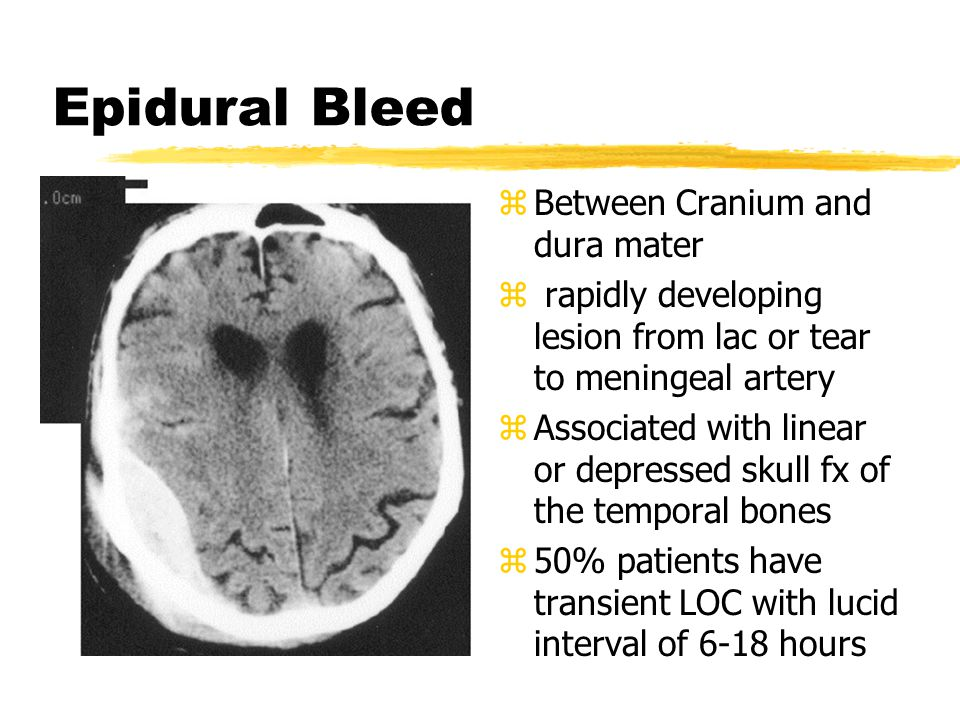 Epidural Bleed Between Cranium and dura mater