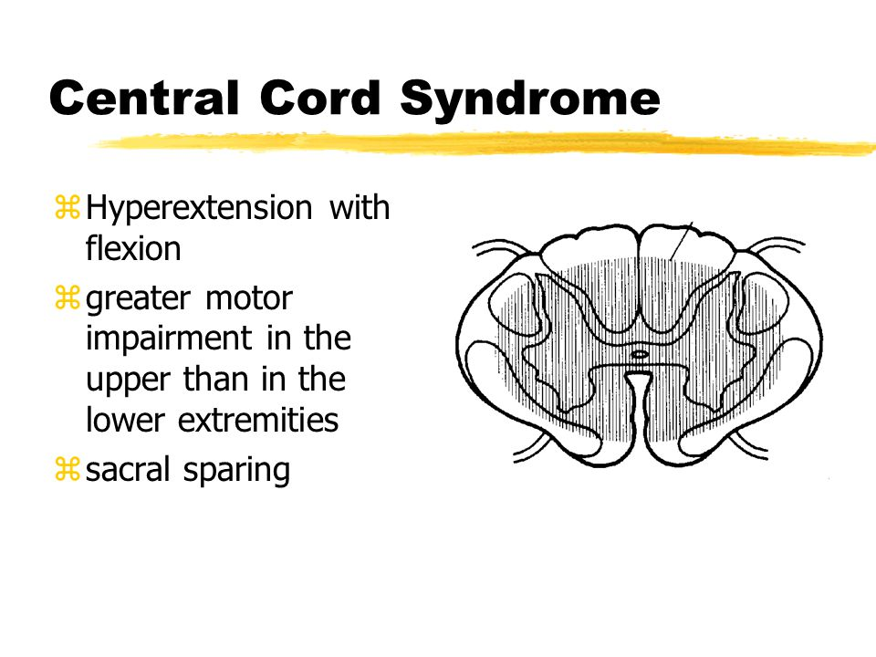 Central Cord Syndrome Hyperextension with flexion