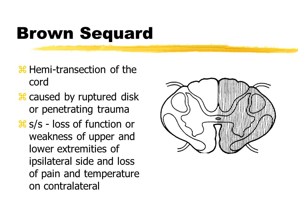 Brown Sequard Hemi-transection of the cord