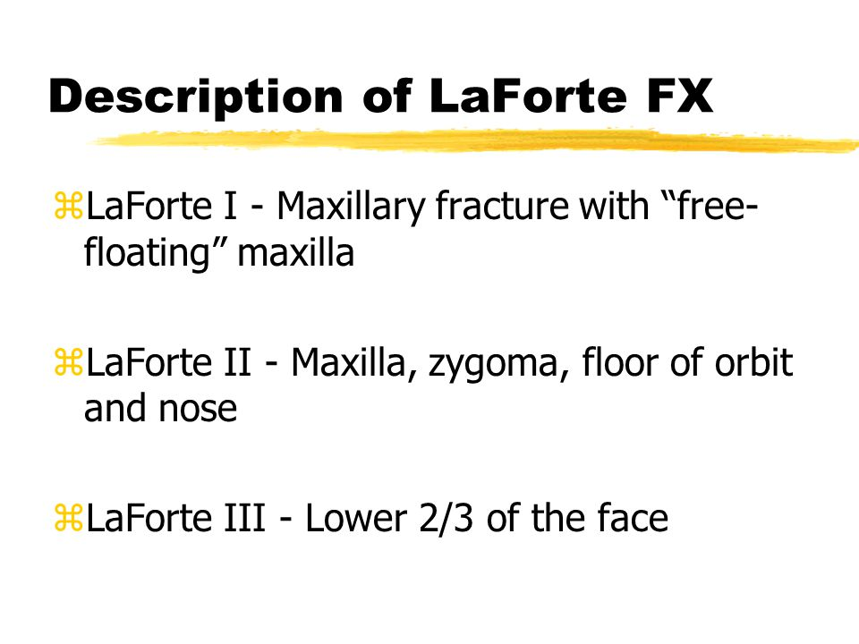 Description of LaForte FX