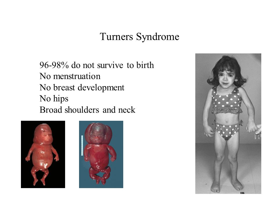 Turners Syndrome 96-98% do not survive to birth No menstruation