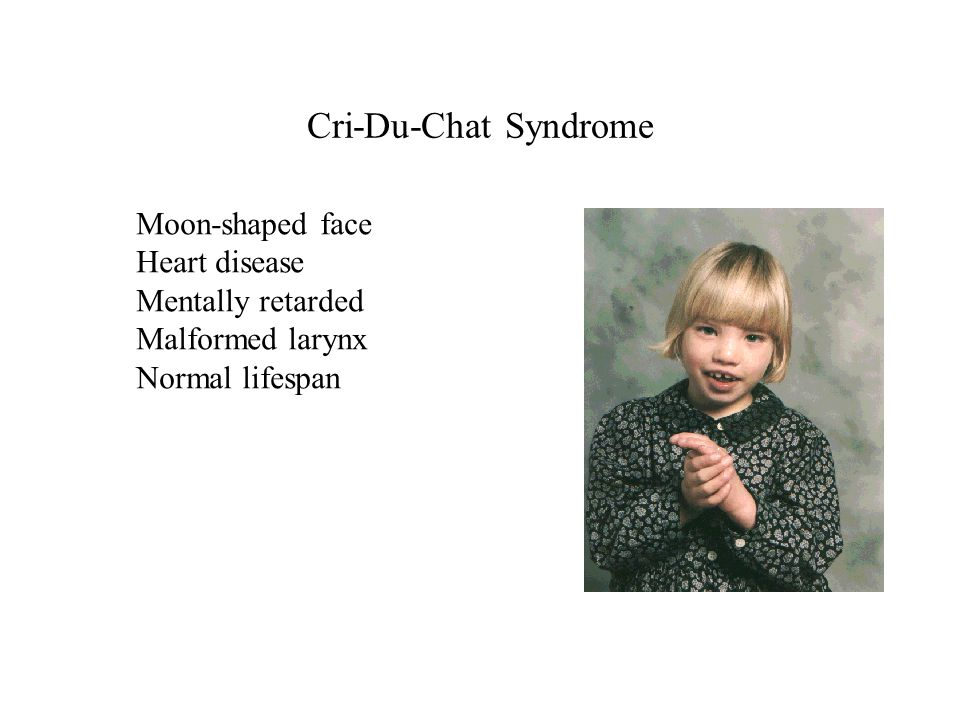 Cri-Du-Chat Syndrome Moon-shaped face Heart disease Mentally retarded