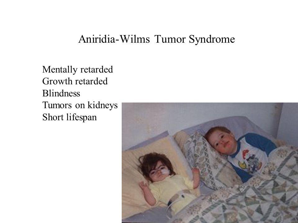 Aniridia-Wilms Tumor Syndrome