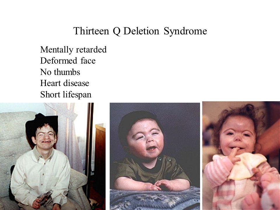 Thirteen Q Deletion Syndrome