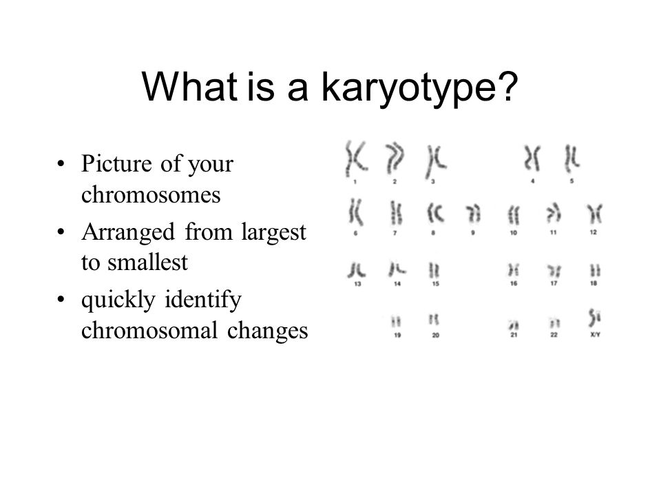 What is a karyotype Picture of your chromosomes
