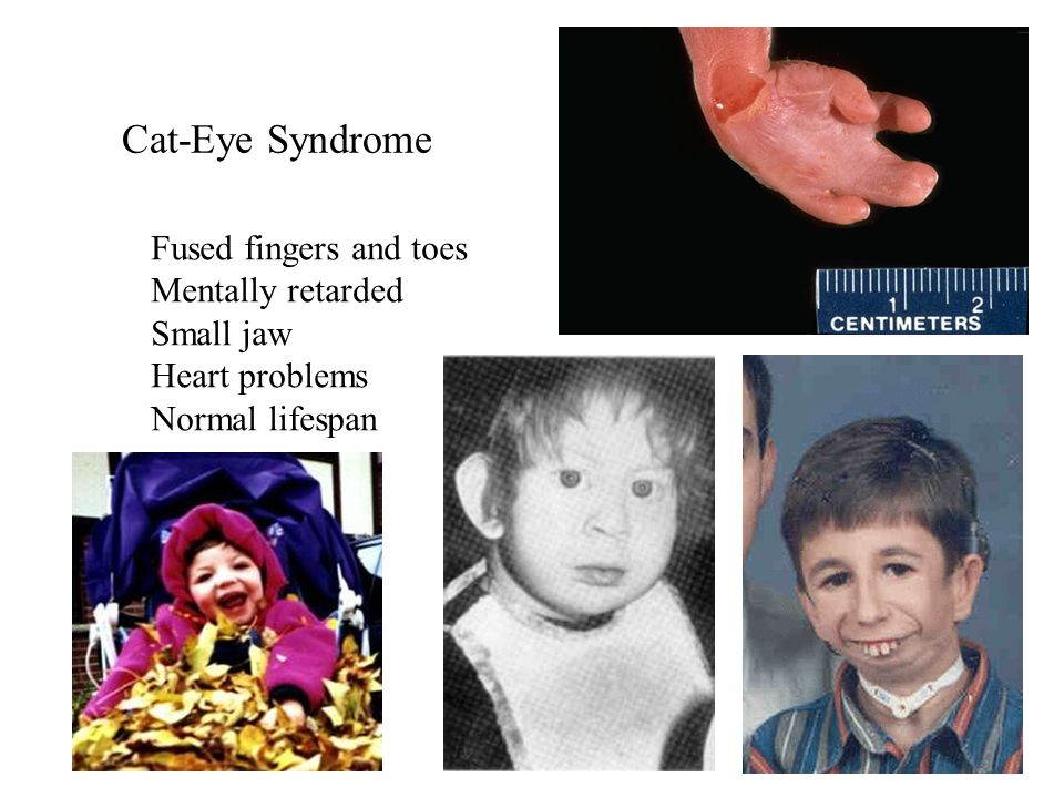 Cat-Eye Syndrome Fused fingers and toes Mentally retarded Small jaw