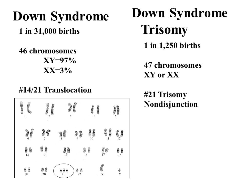 Down Syndrome Trisomy Down Syndrome 1 in 31,000 births 46 chromosomes