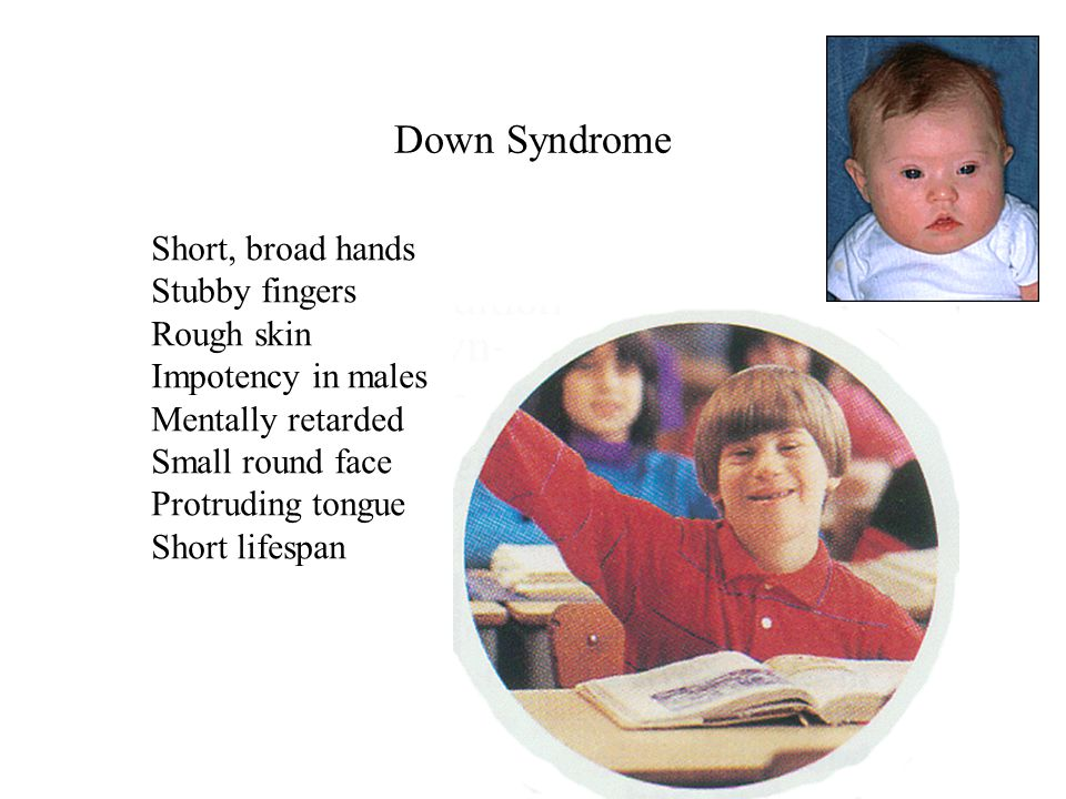 Down Syndrome Short, broad hands Stubby fingers Rough skin