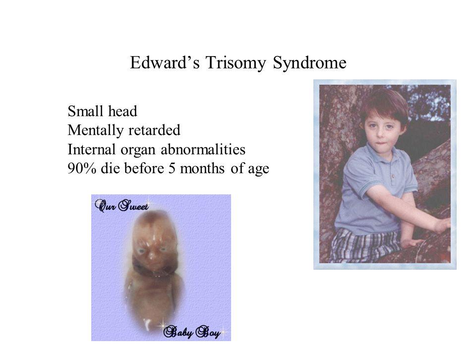 Edward's Trisomy Syndrome