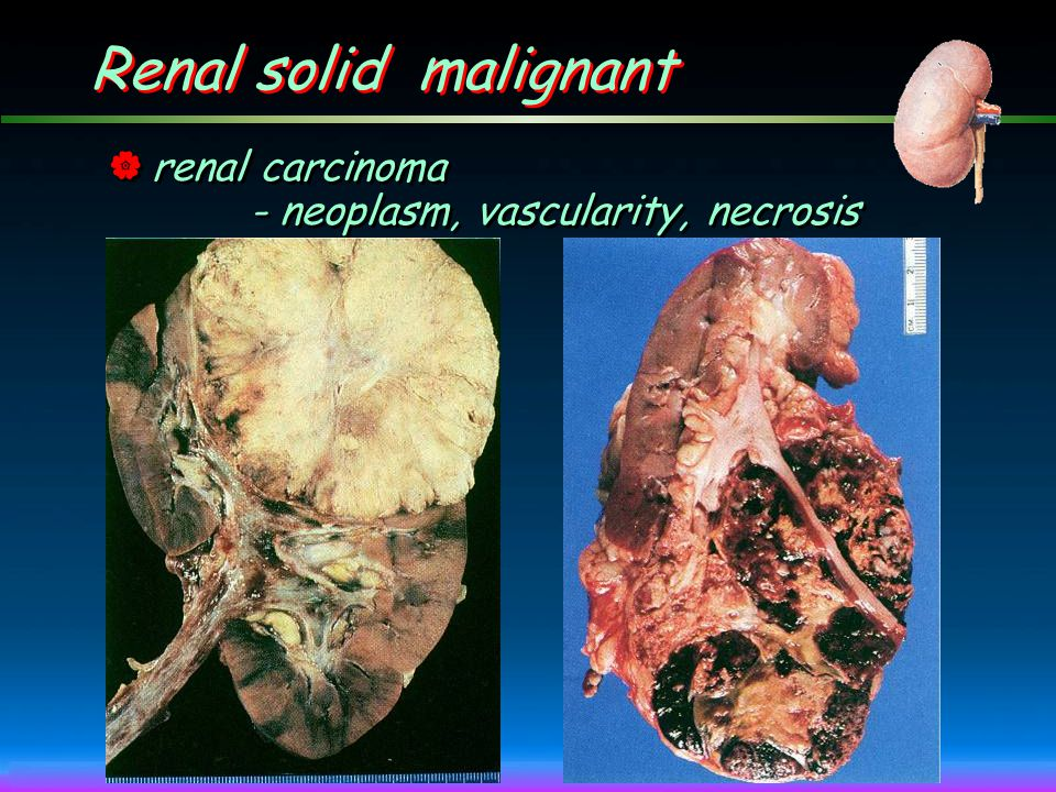 Renal solid malignant renal carcinoma - neoplasm, vascularity, necrosis