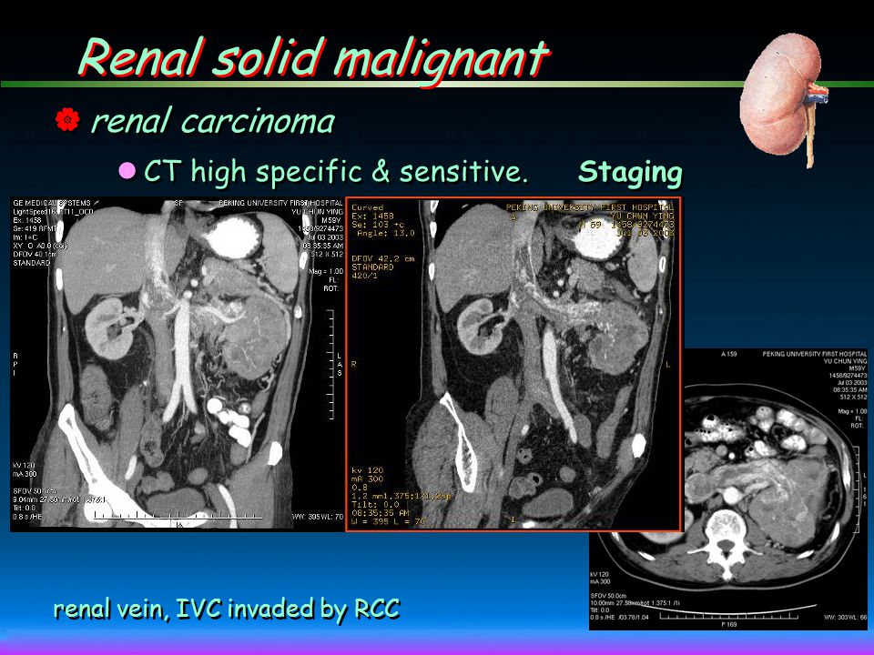 Renal solid malignant renal carcinoma