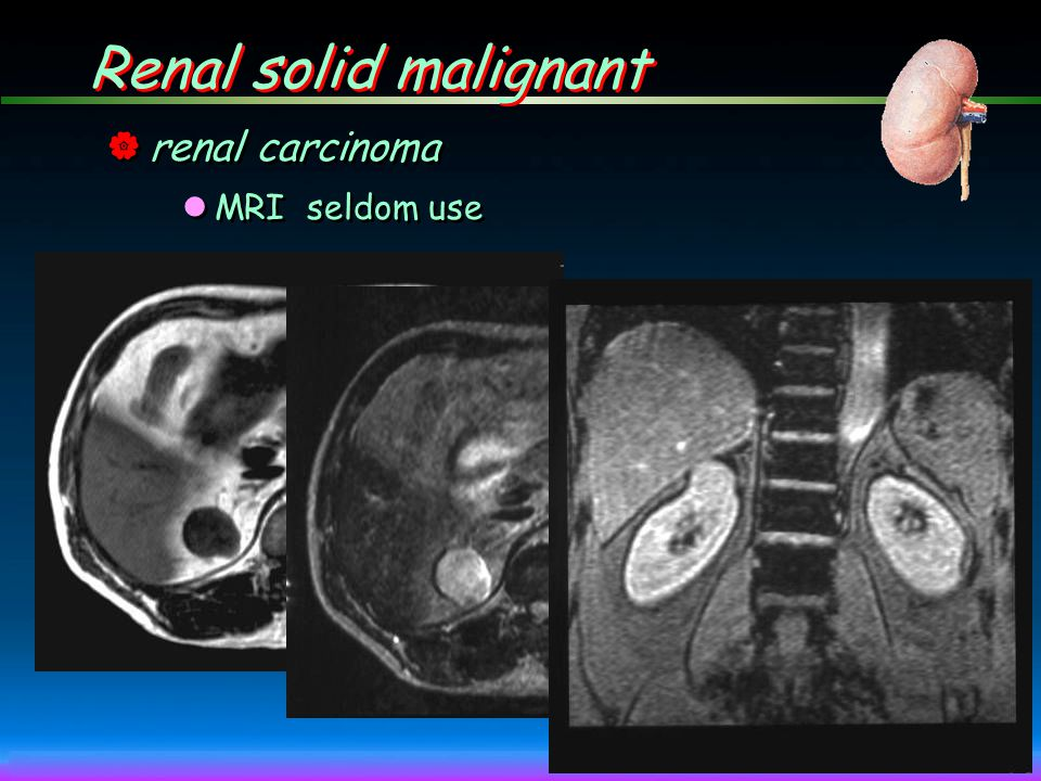 Renal solid malignant renal carcinoma MRI seldom use