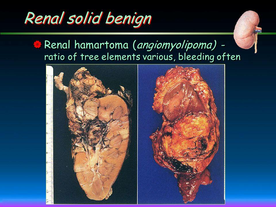 Renal solid benign Renal hamartoma (angiomyolipoma) - ratio of tree elements various, bleeding often.