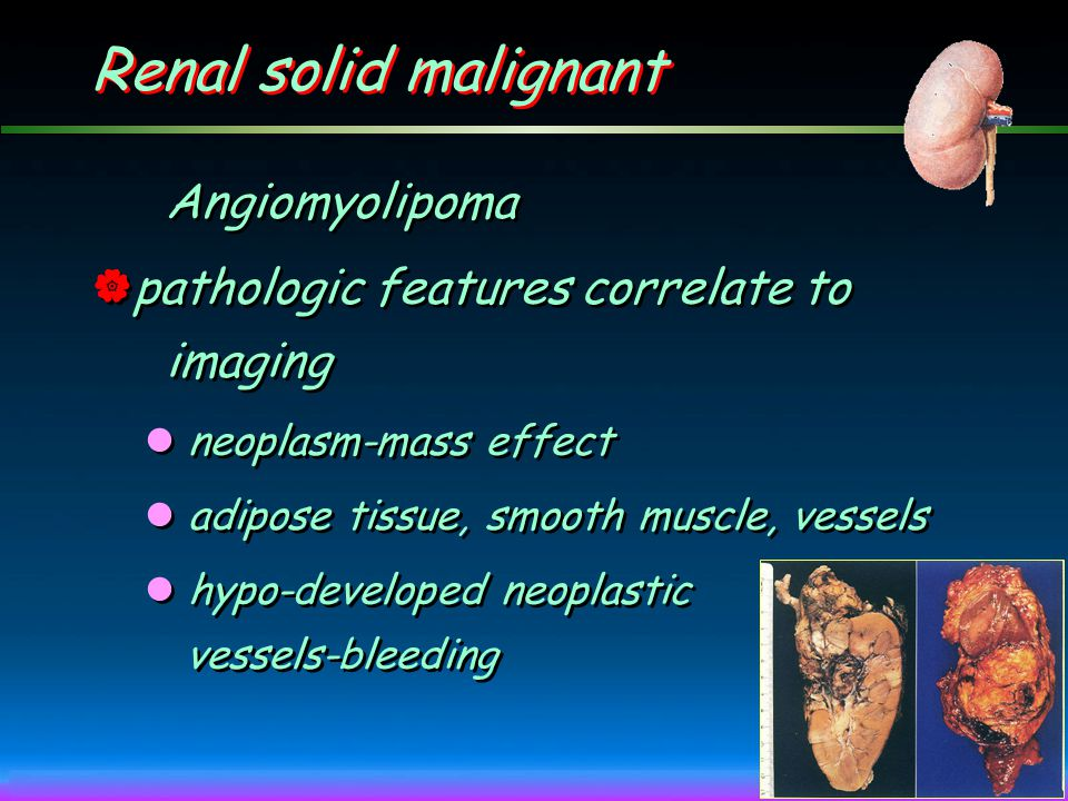 Renal solid malignant Angiomyolipoma
