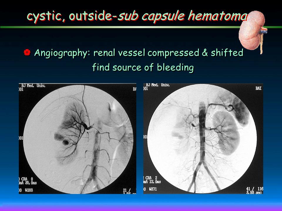 cystic, outside-sub capsule hematoma