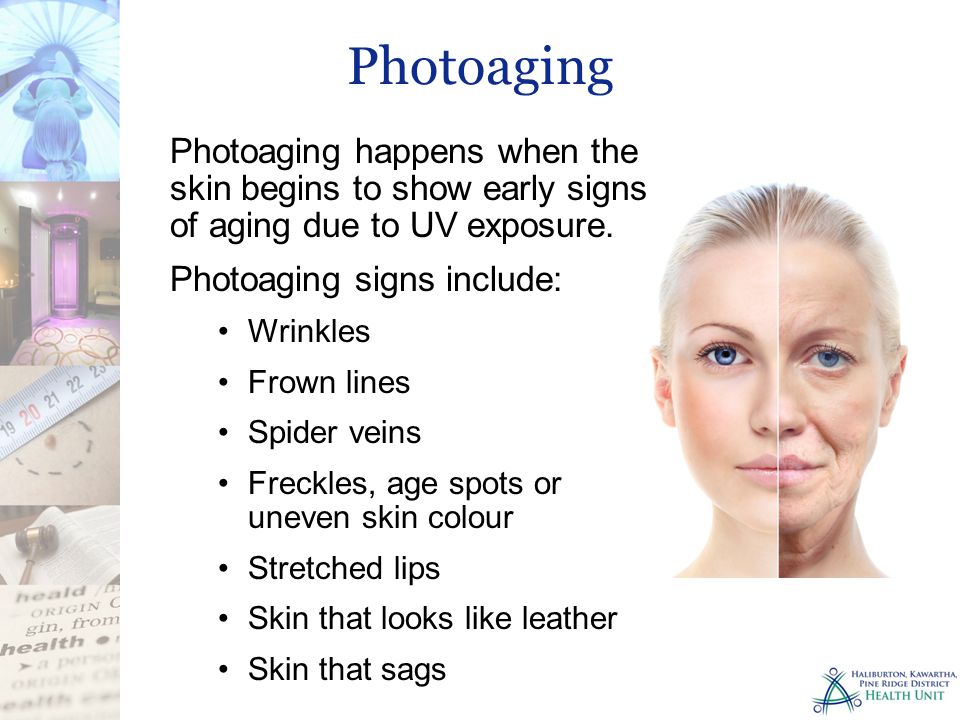 Photoaging Photoaging happens when the skin begins to show early signs of aging due to UV exposure.