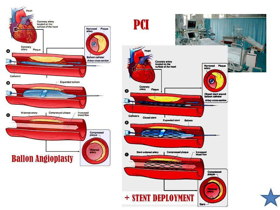 PCI + STENT DEPLOYMENT Ballon Angioplasty