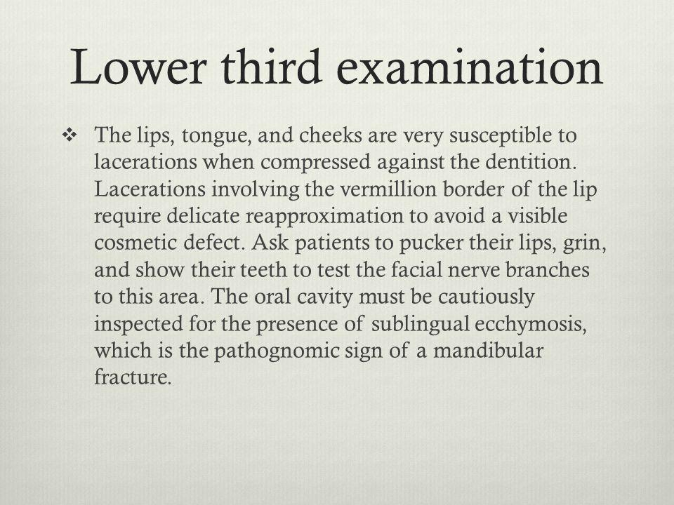 Lower third examination