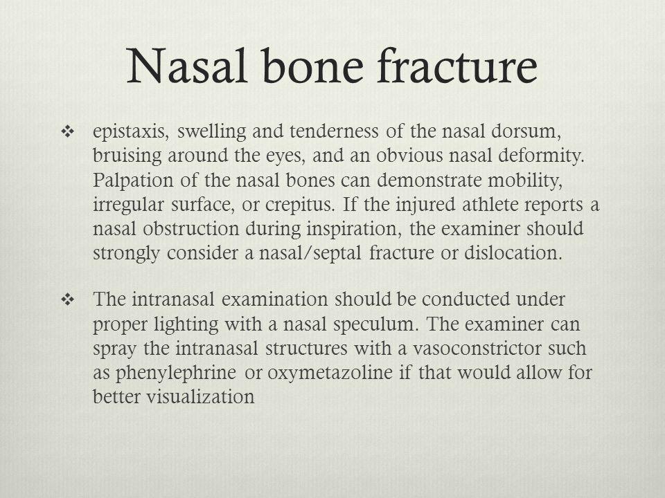 Nasal bone fracture