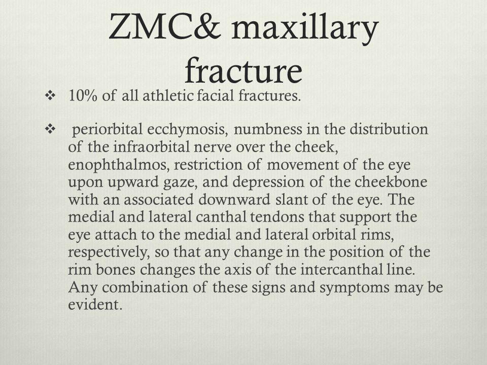 ZMC& maxillary fracture
