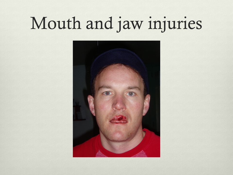Mouth and jaw injuries