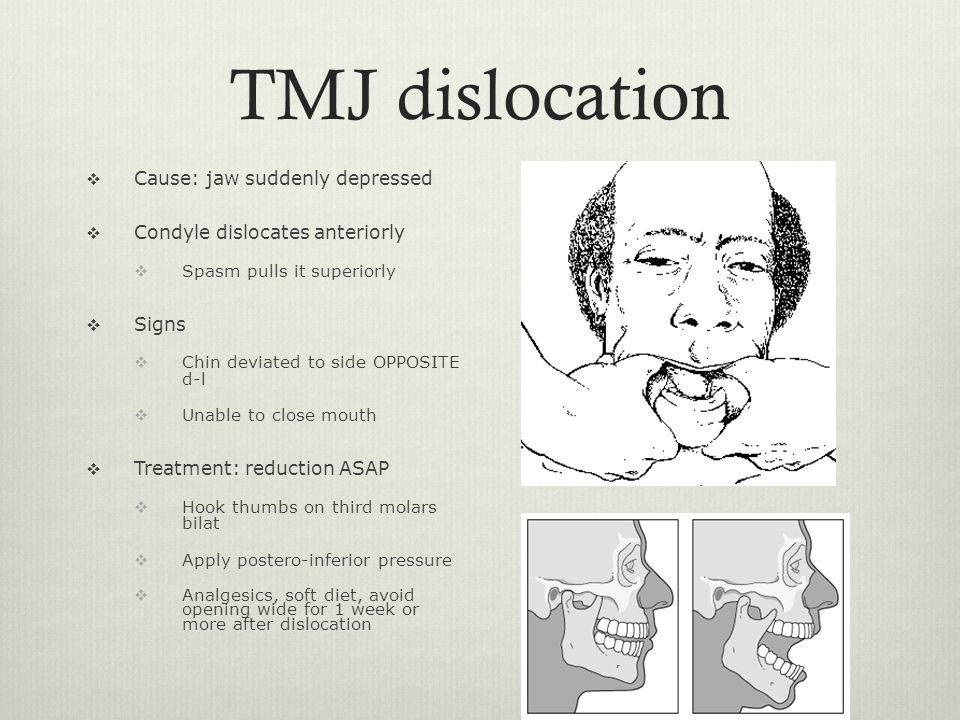 TMJ dislocation Cause: jaw suddenly depressed