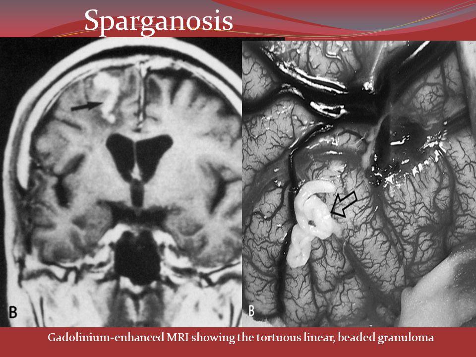 Sparganosis Gadolinium-enhanced MRI showing the tortuous linear, beaded granuloma