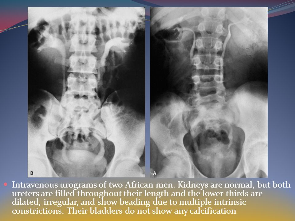 Intravenous urograms of two African men