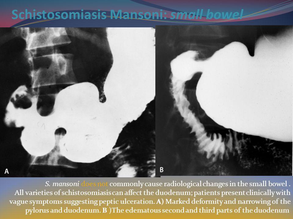 Schistosomiasis Mansoni: small bowel