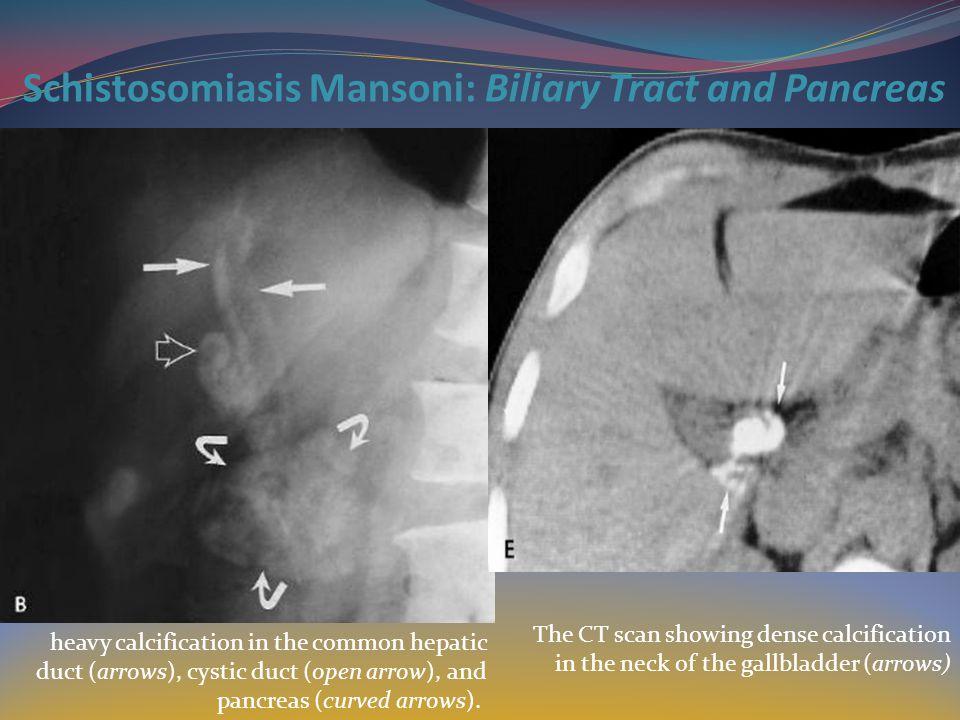 Schistosomiasis Mansoni: Biliary Tract and Pancreas