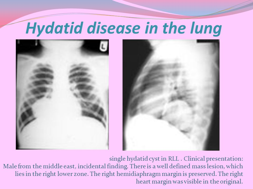 Hydatid disease in the lung