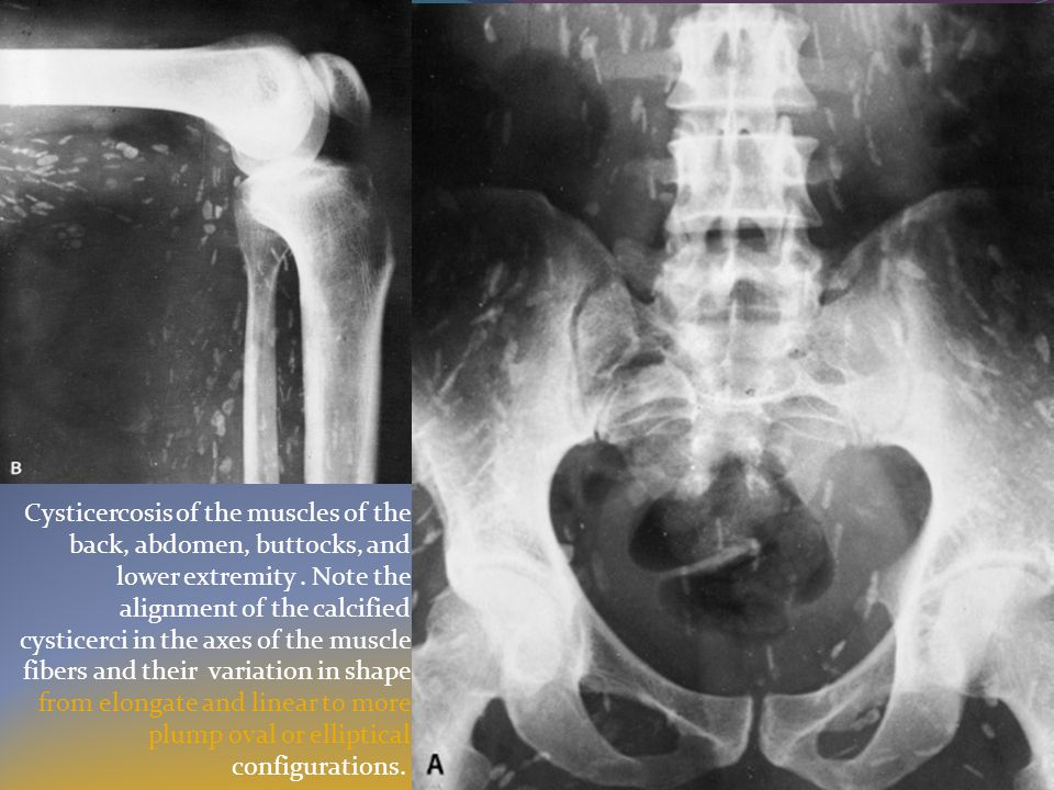 Cysticercosis of the muscles of the back, abdomen, buttocks, and lower extremity .