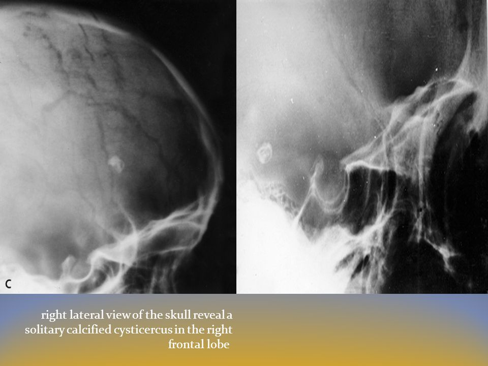 right lateral view of the skull reveal a solitary calcified cysticercus in the right frontal lobe