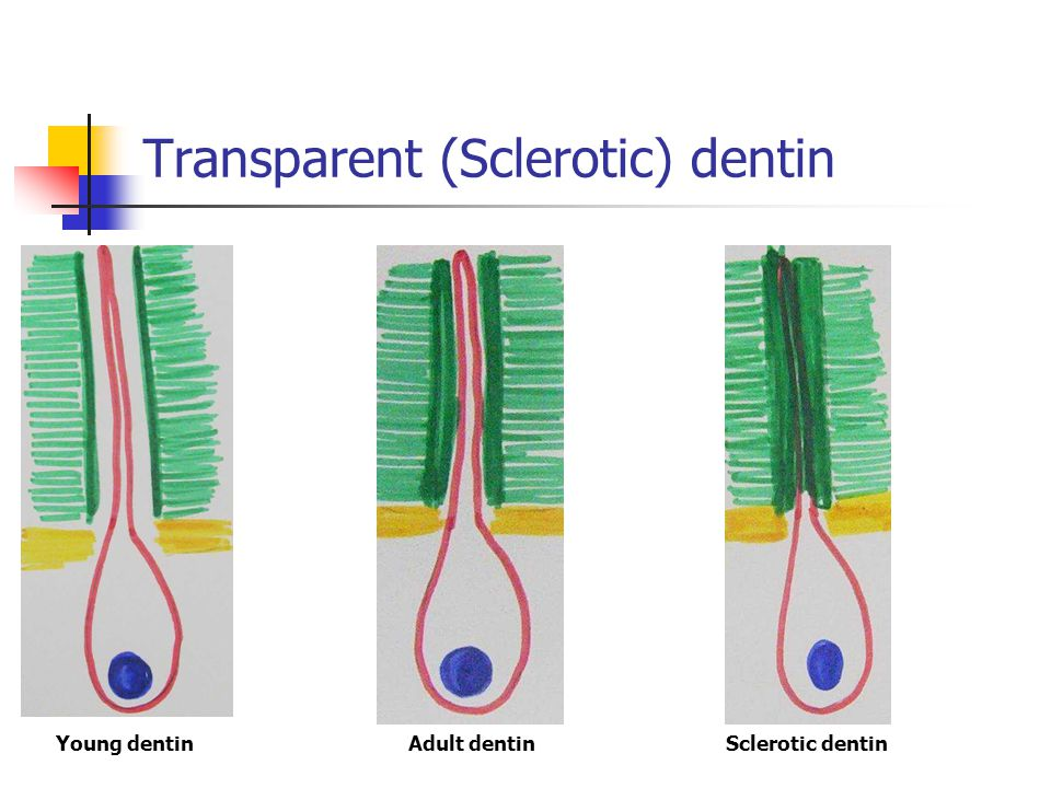 Transparent (Sclerotic) dentin