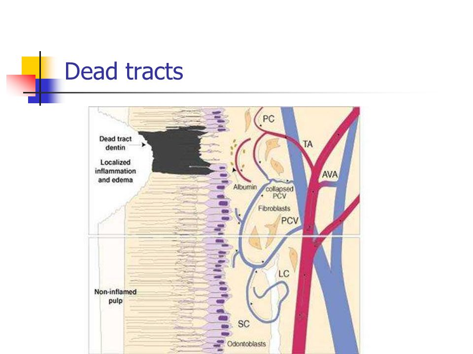 Dead tracts