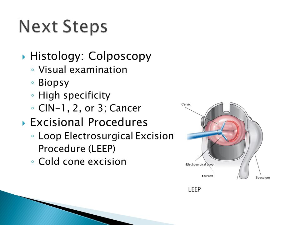 Next Steps Histology: Colposcopy Excisional Procedures