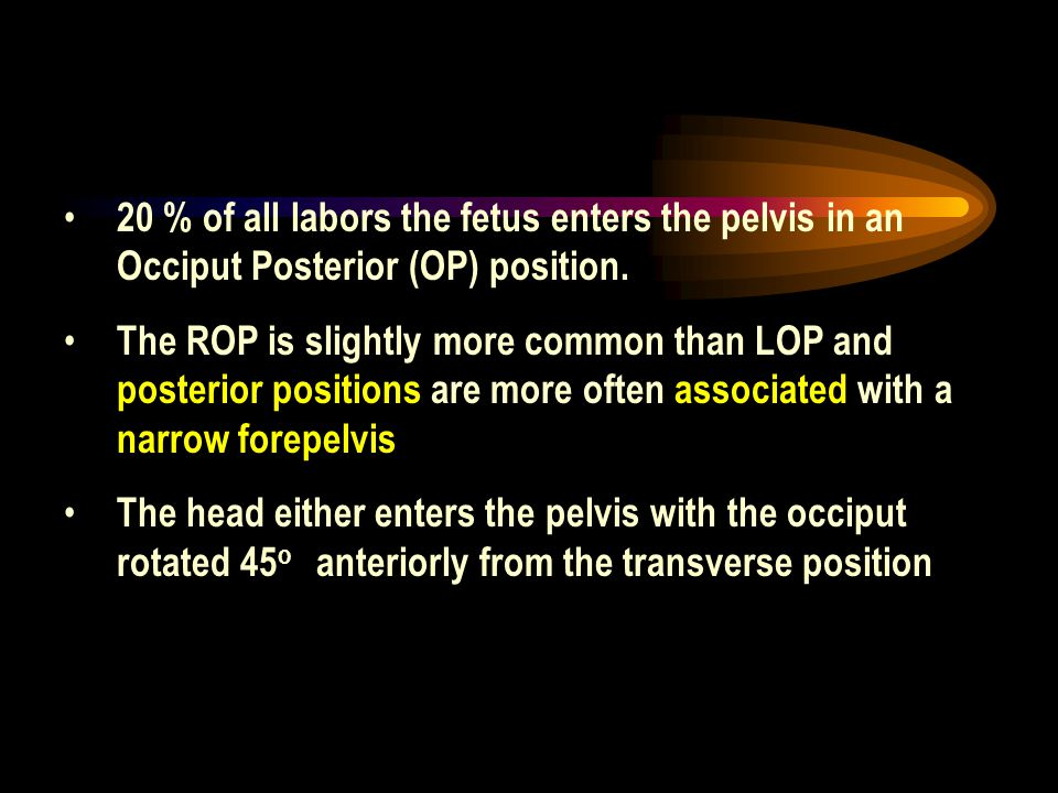 20 % of all labors the fetus enters the pelvis in an Occiput Posterior (OP) position.