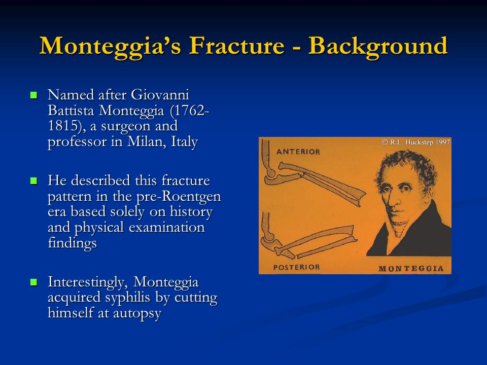 Monteggia's Fracture - Background