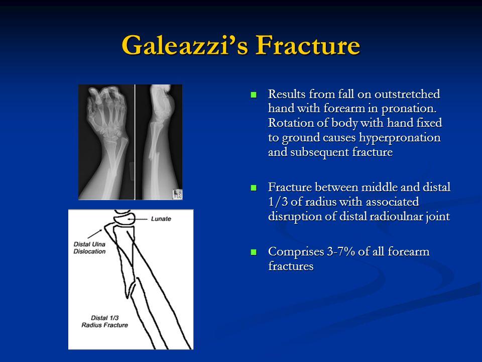 Galeazzi's Fracture